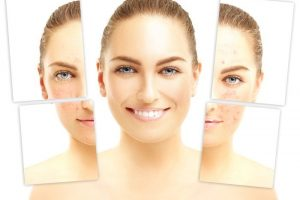 Acne Scar Repair Treatments